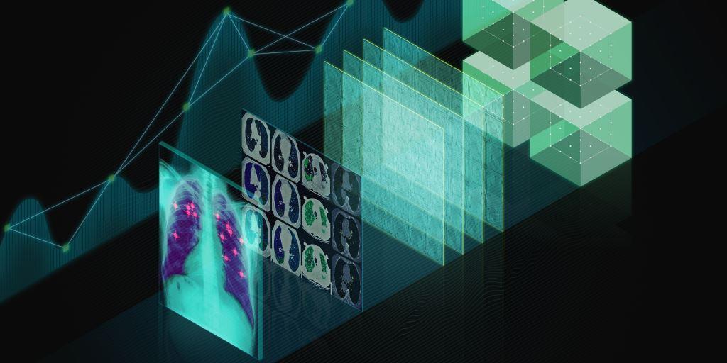חברת Nvidia מכפילה את פעילותה בתחום הבינה המלאכותית ברפואה